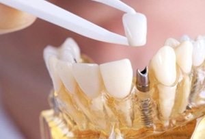 protese-implante